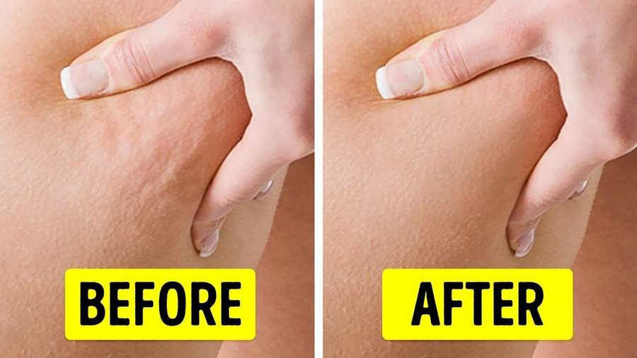 Cellulite cream treatment - before and after photo