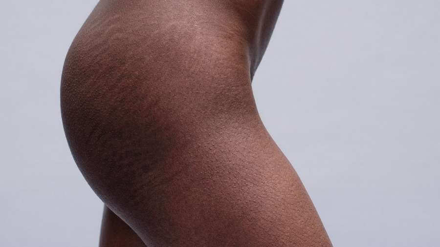 stretch marks treatment results