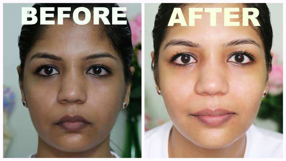 skin bleaching before after
