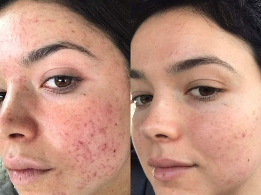 acne before after photo